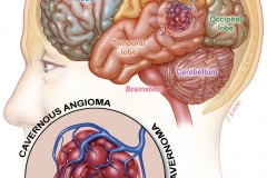 supratentorial cavernous angioma